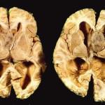 esclerose-tuberosa
