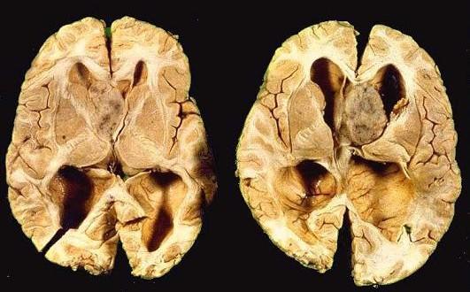 Dia Internacional de Consciencialização para a Esclerose Tuberosa